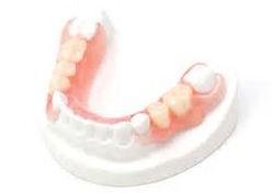 Illustration of lower partial denture