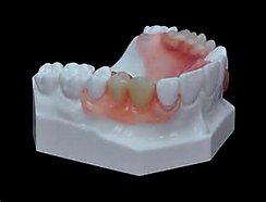 Illustration of an upper partial denture