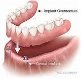 Figure of implant overdenture