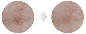 피부진정및 탄력개선.jpg