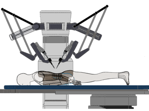 Development of spine surgery robot system guided by stereo X-ray and 3D endoscope