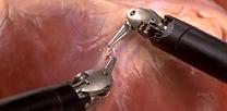로봇수술4.png