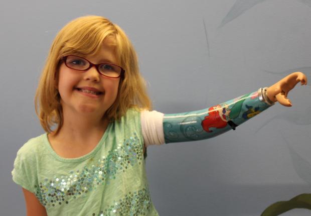 Equipamiento protésico en niños