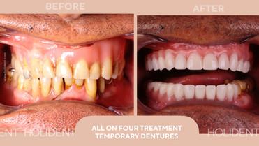 ALL ON 4 TREATMENT TEMPORARY