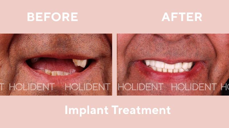 implant_holident