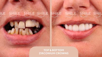 crocked teeth.jpg.jpg