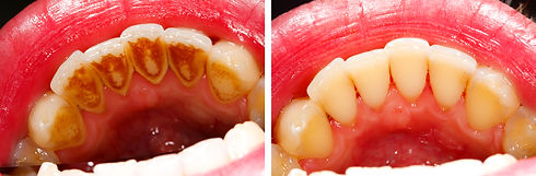 Two photos made by dentist, one before a