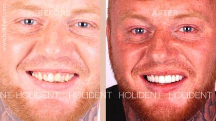 crocked teeth.jpg