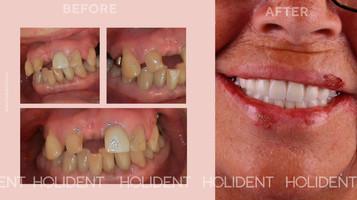 implant_treatment.jpg