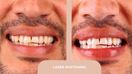 laser whitening.jpg