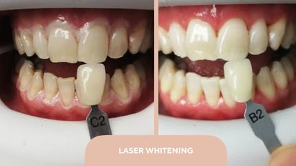 laser white.jpg