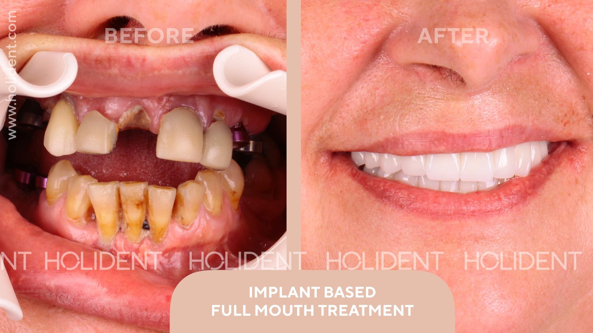implant_treatment_3.jpg