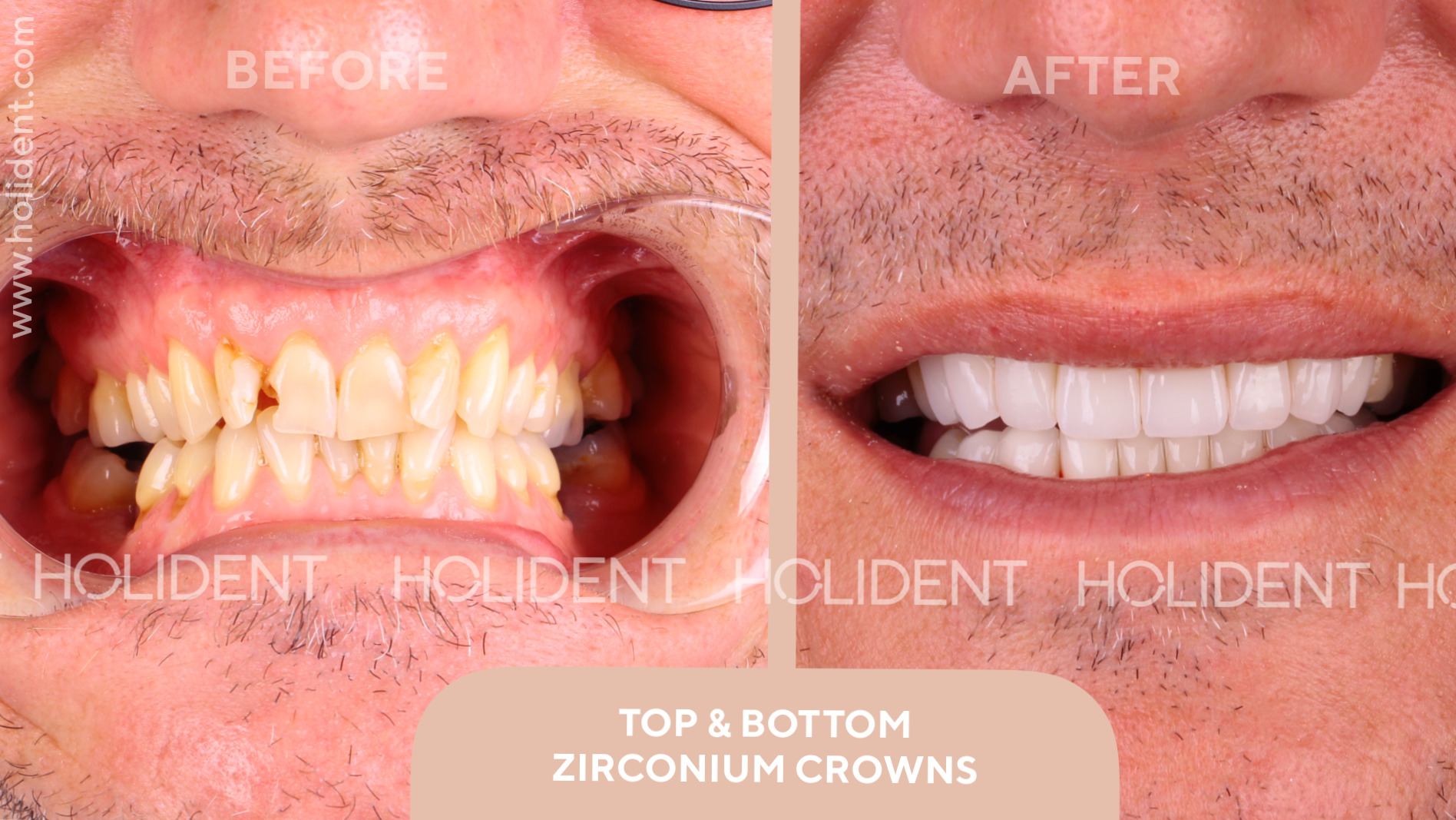 veneers crowns.png