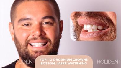 teeth crown.jpg