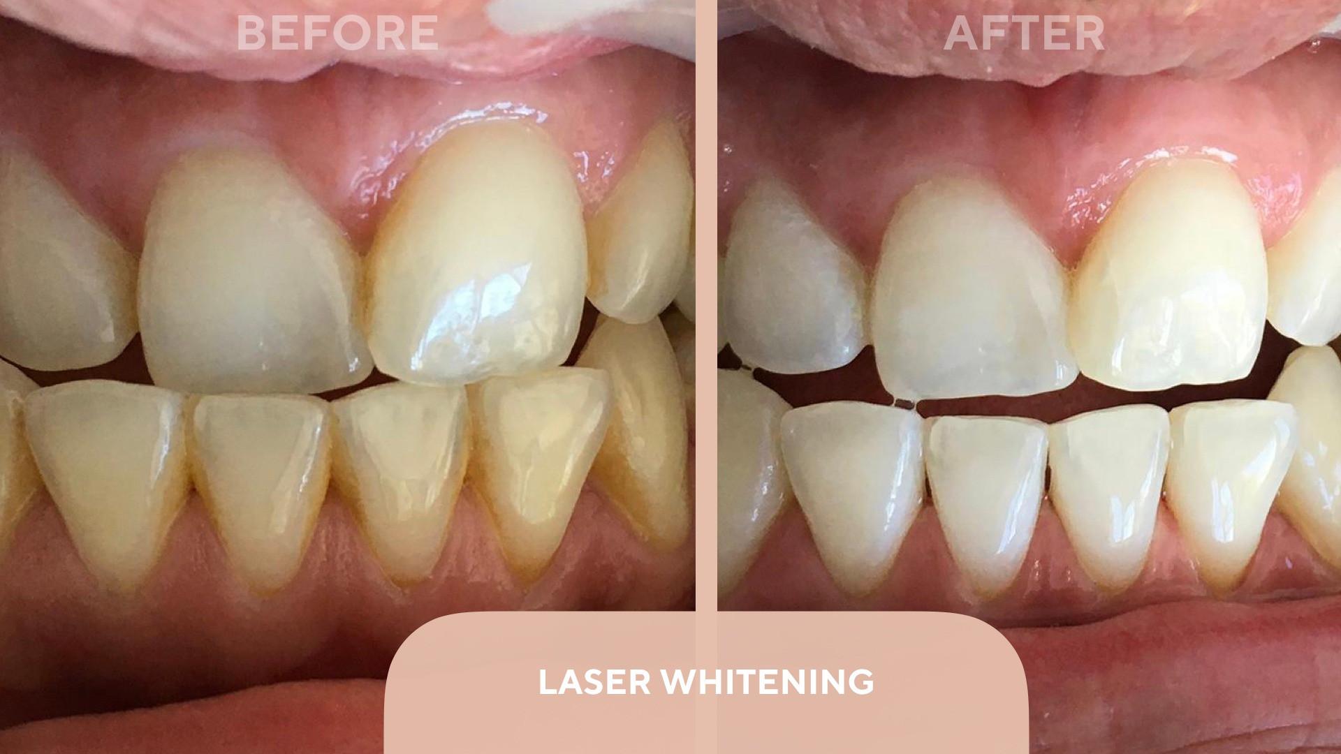 laser whitenng.jpg