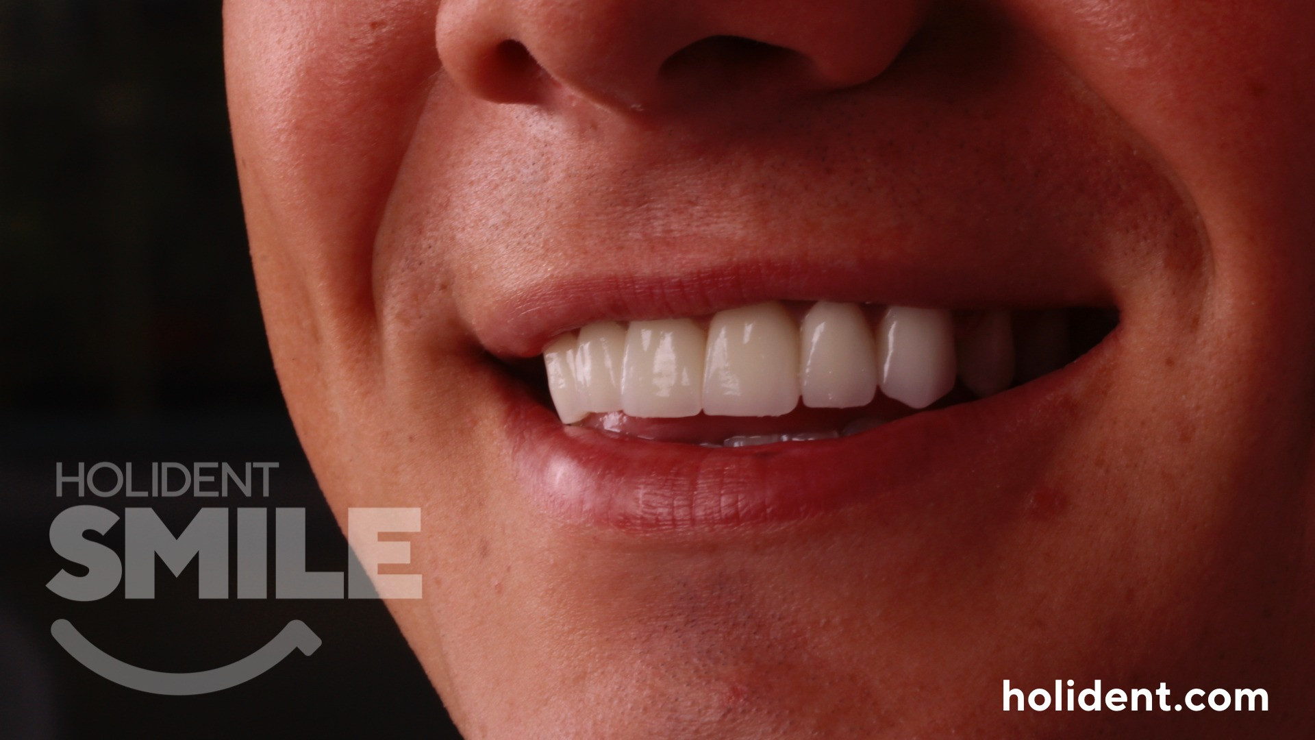 veneers crowns