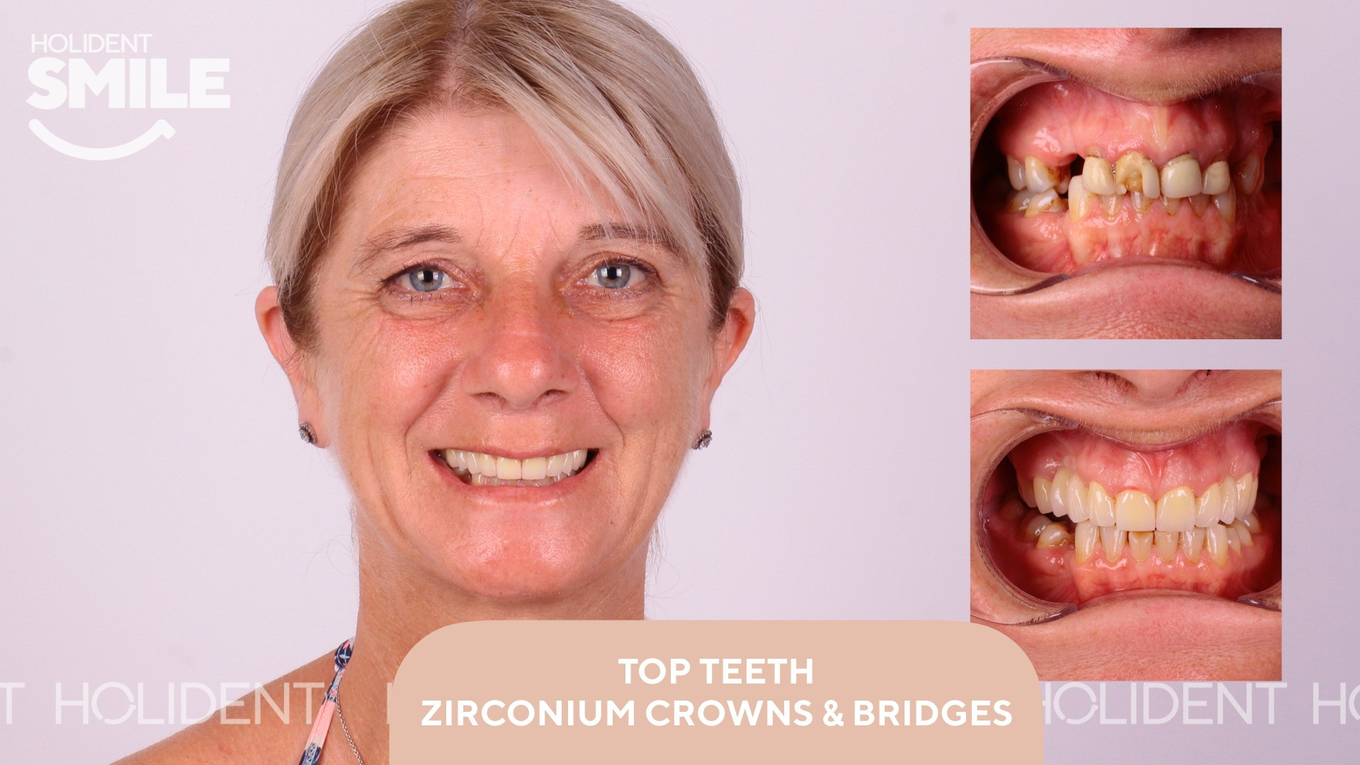 Top teeth crowns and bridges