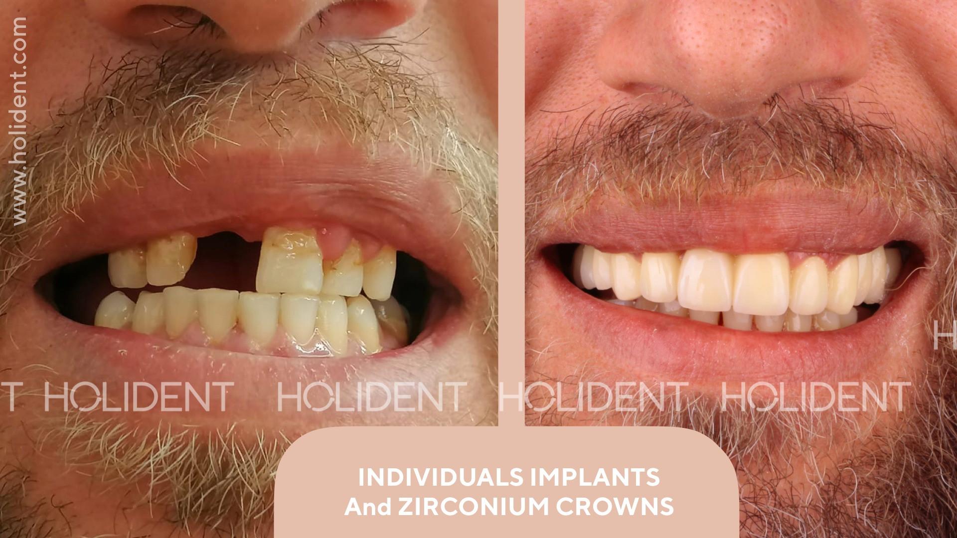 implant_fethiye.jpg