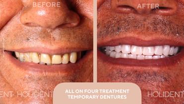 ALL-ON-4 TREATMENT_ TEMPORARY TEETH