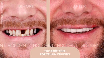 Top teeth crowns and bridges