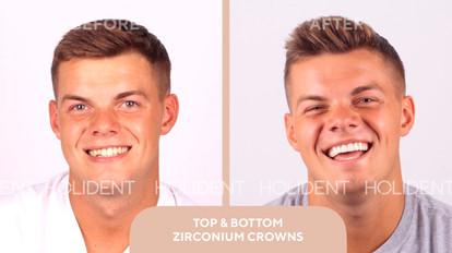 veneers crowns.jpg