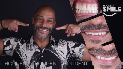 Top_teeth_crowns.jpg