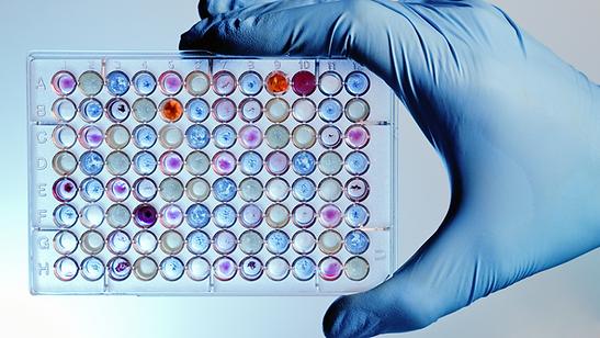15_Microbiology_alt_2.png