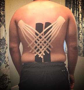 Acadiana Lymphatic Center, Kinesio Taping Application