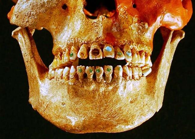 Dentadura maya con incrustaciones
