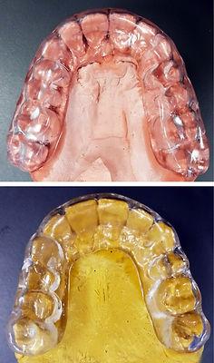 Férulas Clínica Dental Rodríguez Muñoz