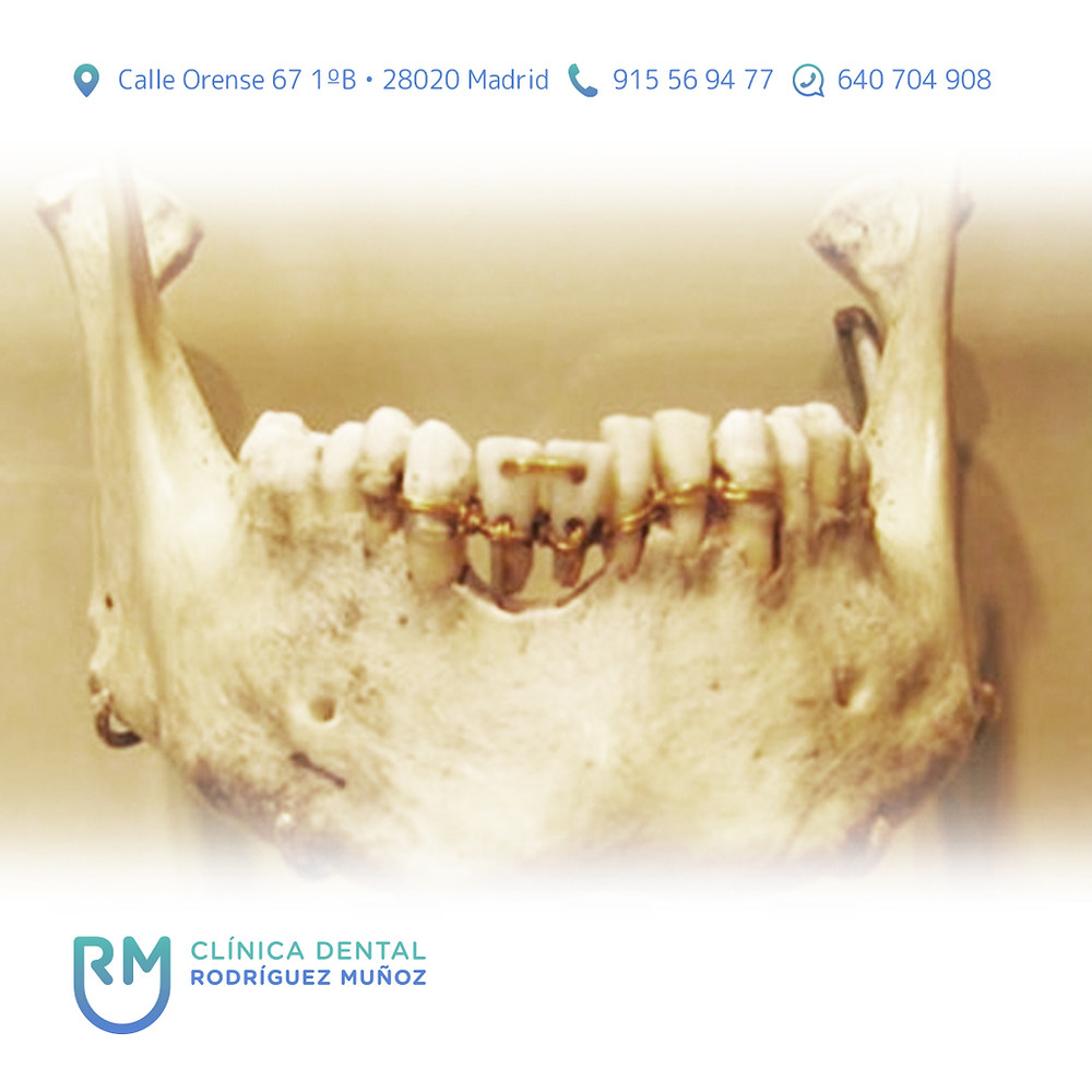Prótesis dentales historia