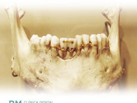 Los materiales de las primeras prótesis dentales