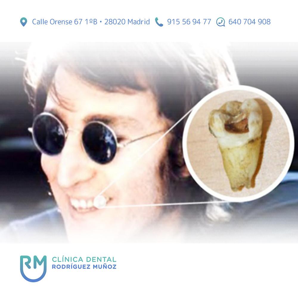 Diente John Lennon