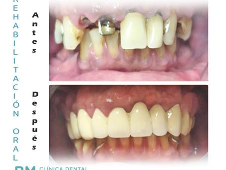 Rehabilitación oral completa