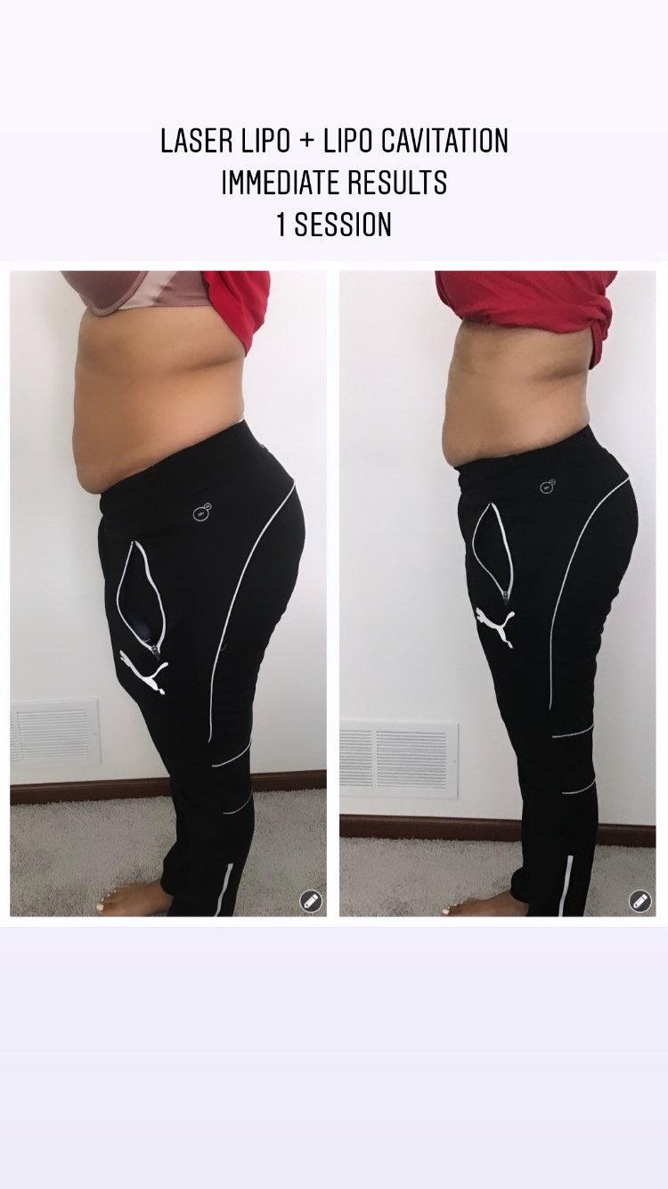 Laser Lipo + Lipo Cavitation Stomach