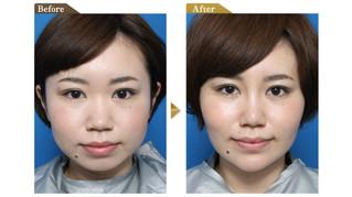 接受假體隆鼻手術前須知【上】