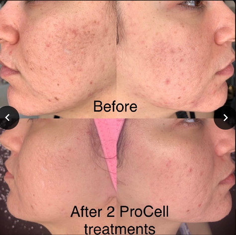 ProCell Therapy