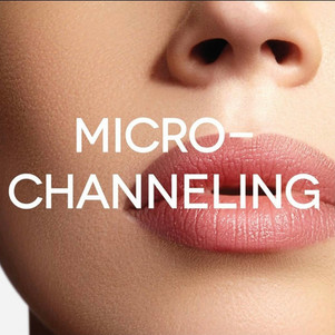 Microchanneling with Procell