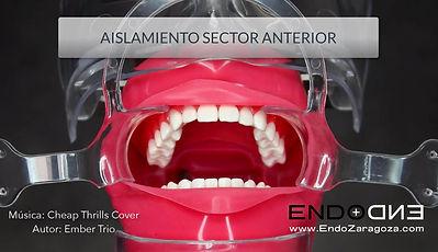 Video sobre aislamiento en endodoncia, concretamente explicamos cómo aislar de forma sencilla el sector anterior. Usamos un único clamp en premolares de un lado y vamos a premolares contralateral. Enseñamos también cómo hacer la técnica del nudo corredizo para introducir el dique en el surco gingival. Isolation endodontics frontal teeth.