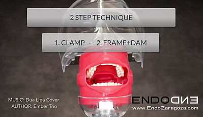 In this isolation technique, your dentist will first take the clamp to the mouth, correctly tied with a floss, and then take the dam and the frame at the same time. It is essential a correct lubrication of the dam to achieve this. This technique is very useful when using wingless clamp. Is the most widely technique in restorative dentistry, where a lot of space is needed to place matrices and wedges