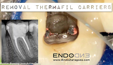 For different reasons, sometimes we have to retreat a previous endodontic treatment. In this video we show the technique that your dentist will use to remove the plastic carriers for an obturation technique called Thermafil. Once removed, after adequate disinfection and three dimensional filling of the root canal system, the tooth can return to normal and the patient will be asymptomatic