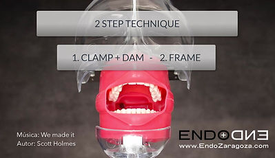 Another isolation technique places the dam and the clamp at the same time. The dam is held only in the arch of the clamp. Your dentist can use it on second and third upper molars, where if the clamp is placed without a dam, then, it is very complex to be able to wear it. In this way, the active part of the clamp can be perfectly visualized, but the dam is almost in position.