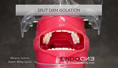 A very useful technique for your dentist when we have cavities under the gum is the use of a split dam. The ideal situation is when we have healthy anterior and posterior tooth, so we can isolate three teeth with a single narrow and elongated hole. We will help ourselves with the use of liquid dam to avoid the filtration of fluids to vestibular or palatine, and will allow us full access to the interproximal space, including the placement of matrix and wedges.
