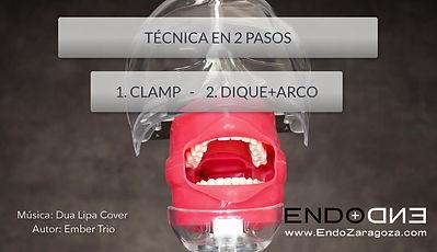 Video sobre el aislamiento en endodoncia mediante una técnica en dos pasos. Primero colocamos el clamp y después llevamos el dique con el arco. Isolation in two steps endodontics.