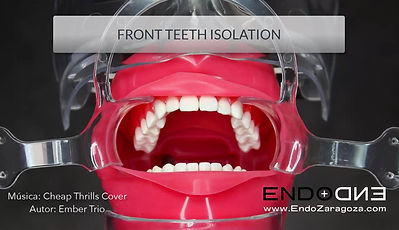 We believe that every dentist shoud avoid placing clamps in the frontal teeth, even in endodontic procedures. Therefore, we propose to perform complete isolation of the zone, regardless of the tooth that is worked. In the video, we use bilateral clamps, but this is not necessary, since a single clamp or wedjects can prevent the dam from leaving the desired position.