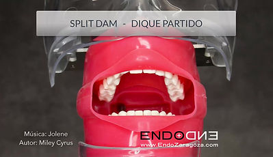 """The placement of the rubber dam is the first step in every endodontic treatment. Your dentist is protecting you by placing it, preventing any instrument from falling into your mouth. We show how to place it with """"All in one"""" technique. In the next videos, you will see diferent ways to place it."""