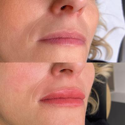Maquillage semi permanent des lèvres lips blush bordeaux