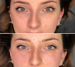 Tâches de rousseur maquillage semi permanent bordeaux