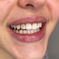 bijoux dentaires bordeaux