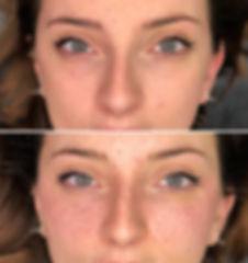 Tâches de rousseur, freckles